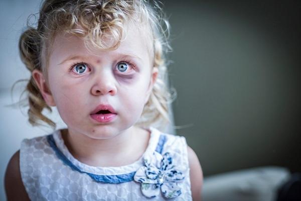 Según la UNICEF el 25% de los adultos ha manifestado haber sufrido algún tipo de maltrato físico en la infancia.